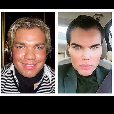 Родриго Альвес до и после операций (фото из Instagram Альвеса)